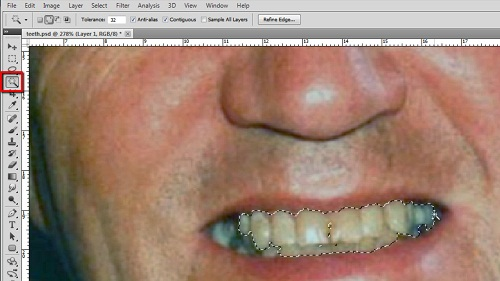 Using the magic want tool to make a selection of the teeth